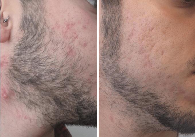 acne clearskin
