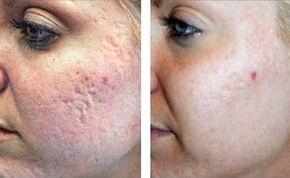 Маска для лица для очищения кожи лица