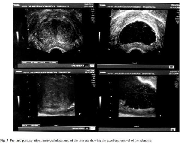 Впечатляваща ехографска снимка, на която се вижда перфектната работа на уролога и пълното отстраняване на хиперплазиралата простатна тъкан