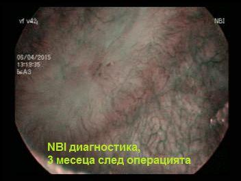 ucs nbi тумор пикочен мехур