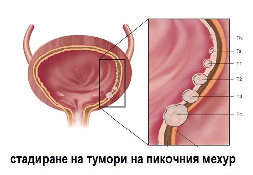 стадиране тумор пикочен мехур