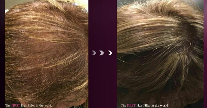 hair filler Hill clinic