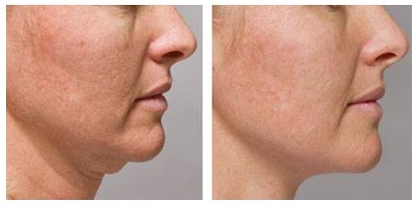 Ефектът на Celluform+ е в 2 посоки: разграждане на мастните натрупвания и стягане на кожата.