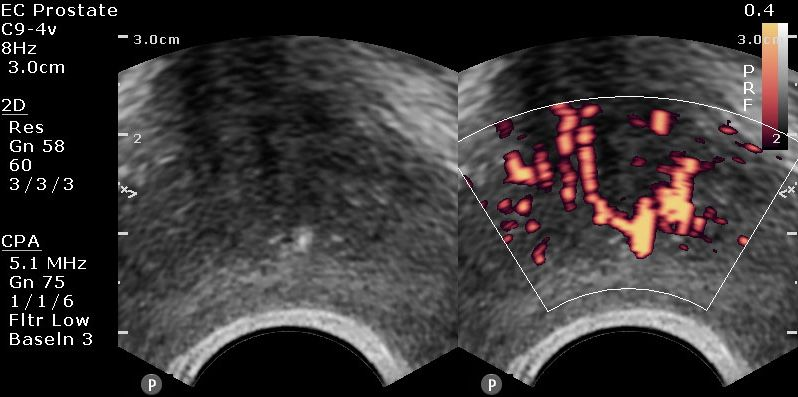 ultrasound prostate