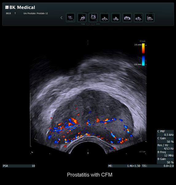prostate простата ехограф