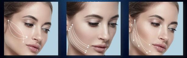 Aptos Linea естетичните дерматолози на Хил клиник въвеждат с канюла, което значително намалява дискомфорта за пациента