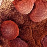 Лапароскопска хирургија за лекување на рак на простатата