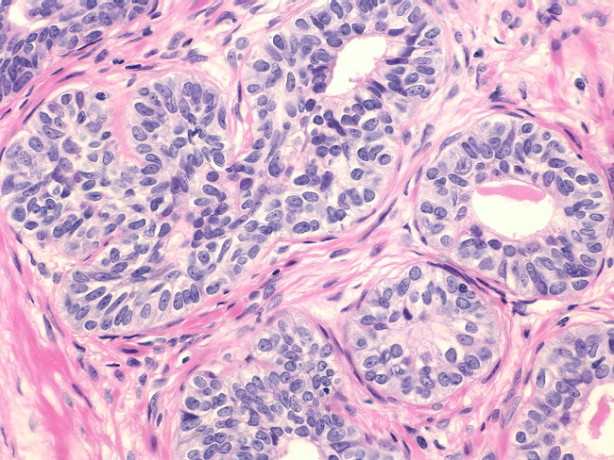 Доброкачествена хиперплазия на простата