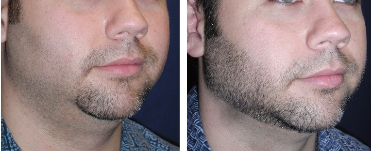 before-after-liposuction-chin-1b