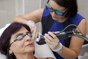 Д-р Ванеска третира внимателно съдови звезди по лицето. За окончателното им премахване е достатъчна само една процедура