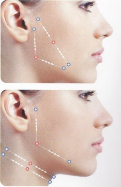 Silhouette Soft коригира успешно скули, лицев контур, долна челюст, вежди, шия