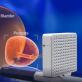 Учени посочиха трансперинеалната биопсия на простата като най-добър метод