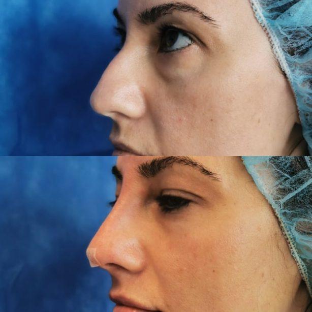 Изправяне на носа с конци, работа на д-р Елеонора Валянова