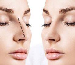 Нехирургична корекция на нос